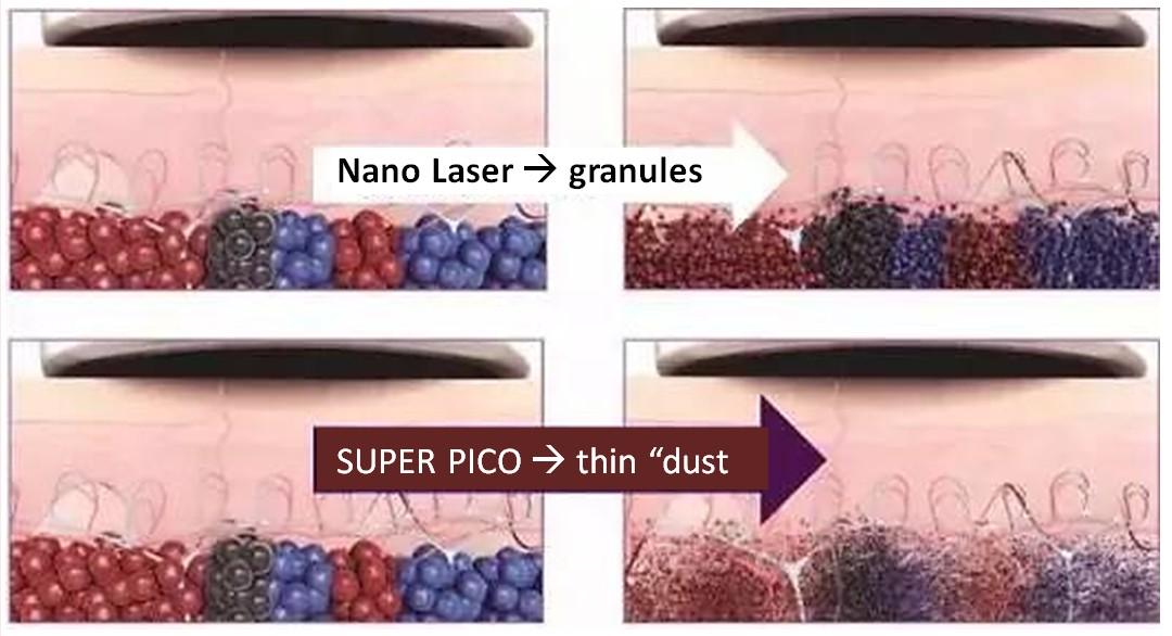 SUPER PICO 300 Laser for Pigmentation/Melasma Removal